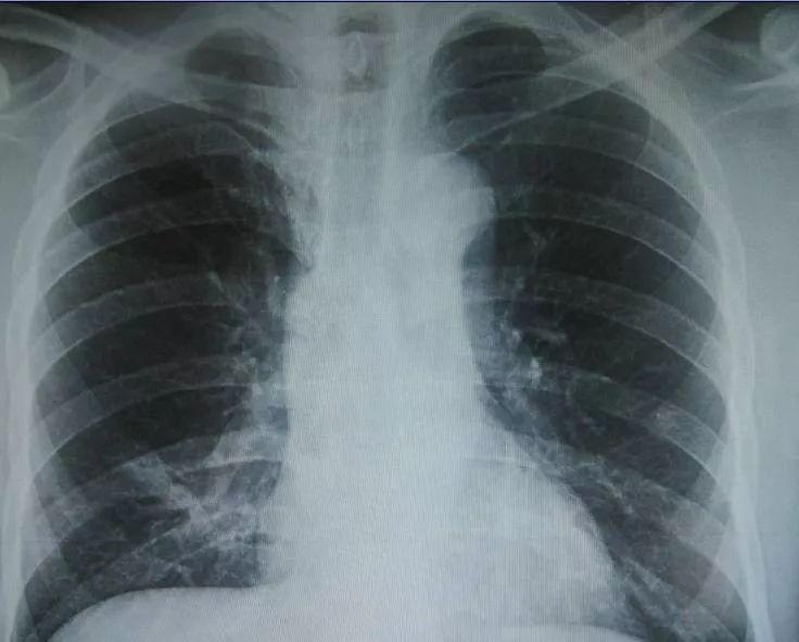 科普篇 | 现代医学影像学:X线、CT、核磁共振、B超的区别是什么?该怎么选择?
